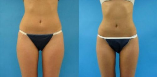 Liposuction Before After J.r