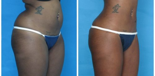 Liposuction Before After O.p3