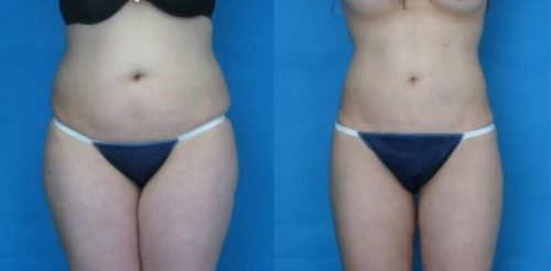 Liposuction Before After P.f