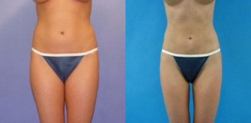 Liposuction Before After R.l