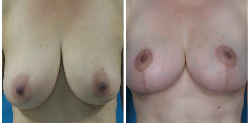 Breast Reduction Before After N.A.