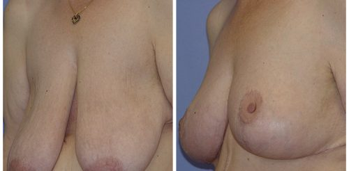 Breast Reduction Before After R.O.