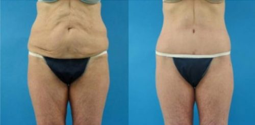 Thigh Lift Before After M.c