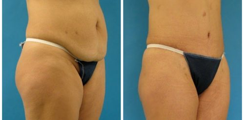 Tummy Tuck Before After Al5