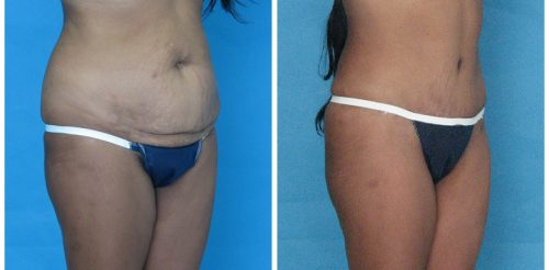 Tummy Tuck Before After Bo5