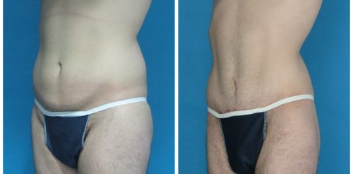 Tummy Tuck Before After Br5