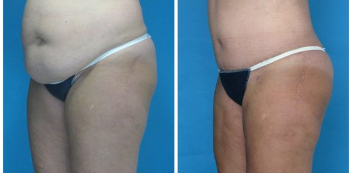 Tummy Tuck Before After Fa5