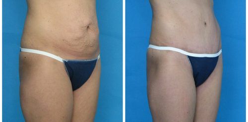 Tummy Tuck Before After Ha5