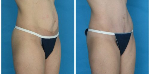 Tummy Tuck Before After Hr5