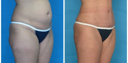 Tummy Tuck Before After Ka5